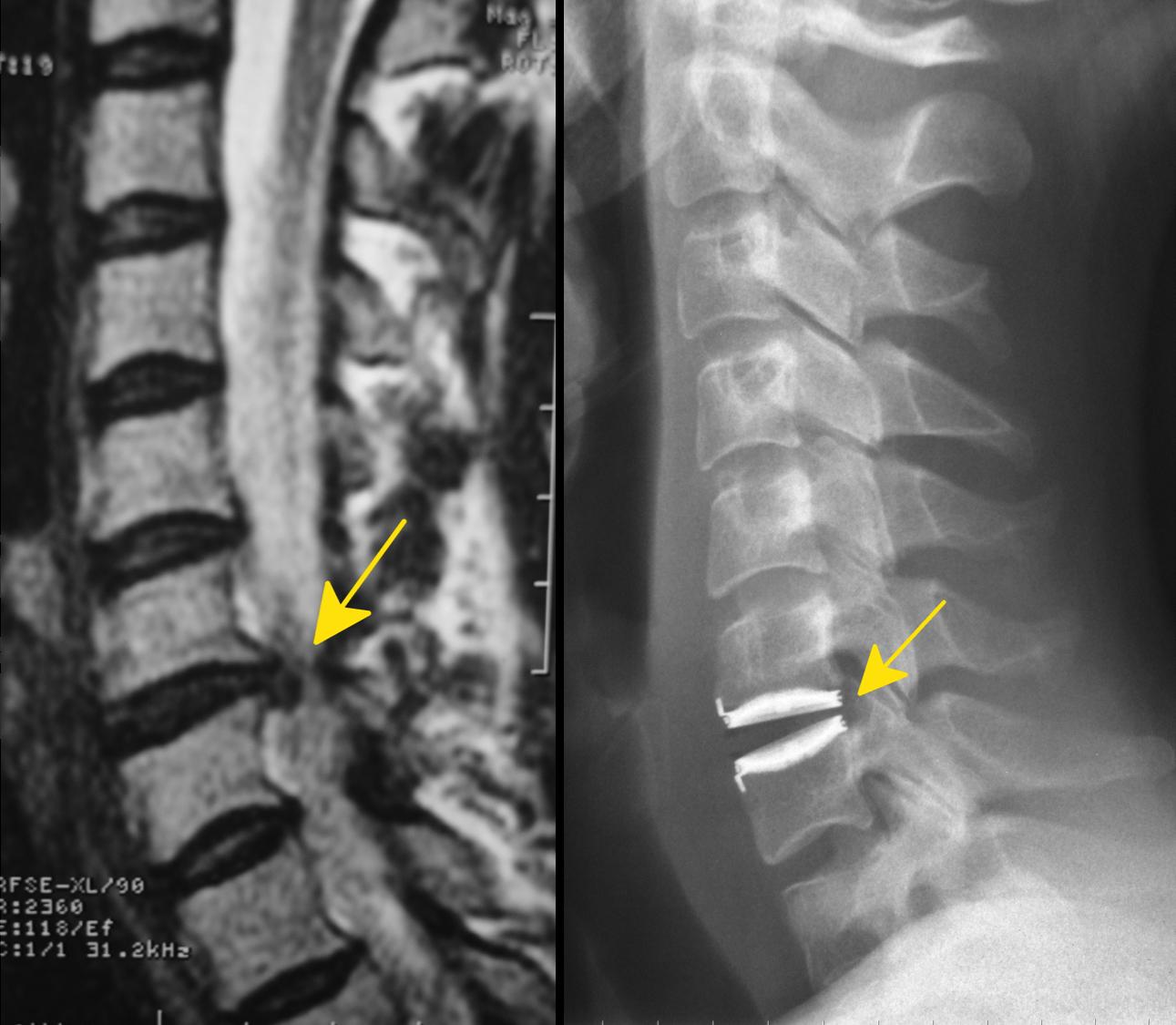 Links der Bandscheibenvorfall der Halswirbelsäule, rechts nach der minimalinvasiven Entfernung und Implantation einer Bandscheibenprothese.