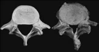 Links ein normal weiter Spinalkanal, rechts mit deutlicher knöcherner Stenosierung.